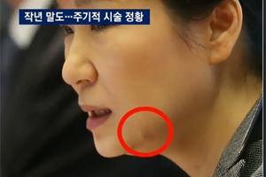 """朴대통령, 세월호 당일 실리프팅 시술 가능성…""""김영재 전문 분야"""""""