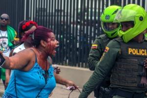 [포토] 피를 흘리며 경찰을 향해 소리치는 콜롬비아 여성