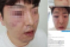 경찰, '범인 오인 폭행' 논란에 성동경찰서 감찰 조사