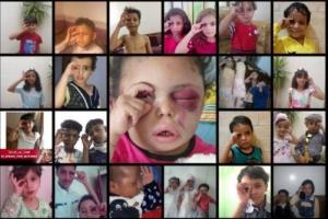6살 부타이나 눈에 보인 전쟁… 예멘의 아픔 함께해요