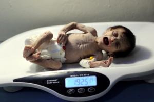 영양실조로 뼈만 남은 아기…'시리아의 참상'