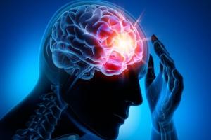 콜레스테롤 조절약이 뇌전증도 막아준다