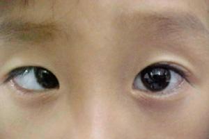 """""""따로 노는 눈"""" 사시 환자 절반은 9세 이하 아동"""