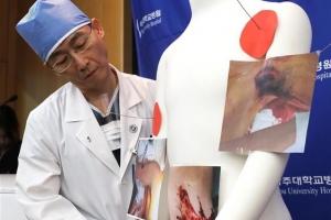 27cm 기생충 수십마리 나온 귀순병사…열악한 북한 실태 짐작