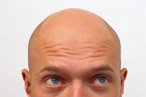 마흔 전에 머리 세거나 탈모 심해지면 심장병?