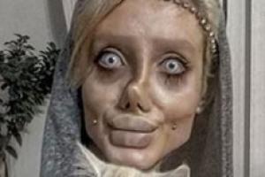 안젤리나 졸리 닮으려 성형…이란 20대女 논란