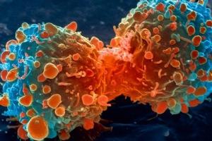 암 피할 수 있는 가장 좋은 방법은 '생활습관 개선'