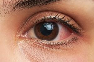 안구 조직 발달 속도 들쭉날쭉인 이유 나왔다