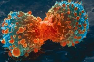 암 일으키는 씨앗 '종양줄기세포' 찾아 없앤다