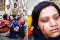 피눈물 흘리는 인도 소녀 알고보니…혈안증
