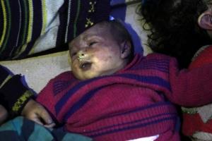 """[포토] 시리아, 반군지역에 화학무기 공격…""""최대 100여명 사망"""""""