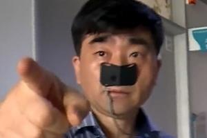 배명진 코에 붙은 검정테이프의 정체…위산 역류검사 장치?