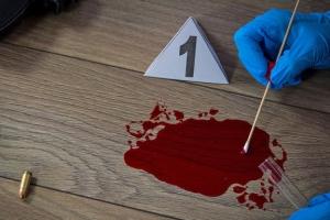 범죄현장의 피 한 방울로 용의자 나이, 질병까지 알아낸다