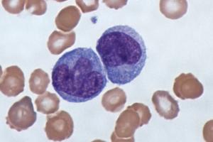 면역세포의 배신...암 전이, 알고보니 면역세포 때문이라고?