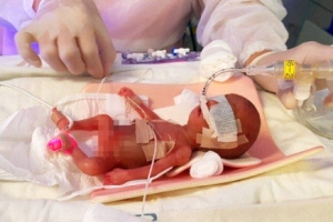 302g 한 뼘 '사랑이' 태어난 날 엄마는 1% 희망을 놓지 않았다