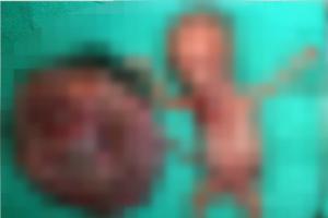 워마드, 이번엔 '낙태 인증'…태아훼손 사진 올려
