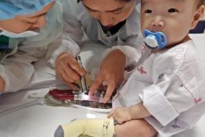 한 살배기 아기 보조심장 이식… 치료 첫 성공