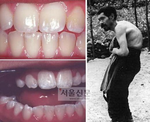 수돗물불소화 지지자들은 충치예방을 통한 깨끗한 치아(사진 위)를 위해 불소투입이 필요하다고 주장한다.하지만 불소에 만성노출될 경우 이빨에 흰점이 생기는 치아불소증(아래)이 나타나고 심할 경우엔 골격불소증(오른쪽)에 걸릴 수 있다고 전문가들은 지적한다. 격월간지 '녹색평론' 제공