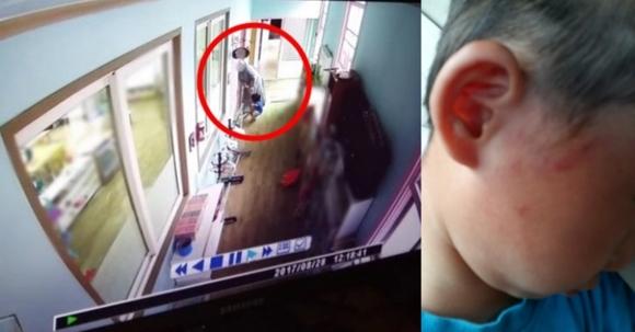 지난 28일 충북 영동의 한 유치원에서 두 살 원생이 유치원장인 수녀에게 폭행당했다는 신고가 접수돼 경찰이 수사에 나섰다. 사진은 폭행장면 CCTV캡쳐(왼쪽)와 폭행으로 인한 피해 학생 얼굴에 생긴 상처.  독자 제공 = 연합뉴스