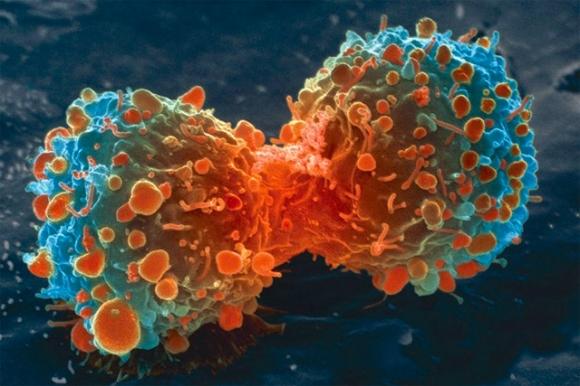 종양줄기세포는 암세포로 분화되기 전 단계의 씨앗세포로 재생과 분화능력이 강해 암을 만들고 전이 재발시키기도 한다. 미국 하버드대 줄기세포연구소 제공