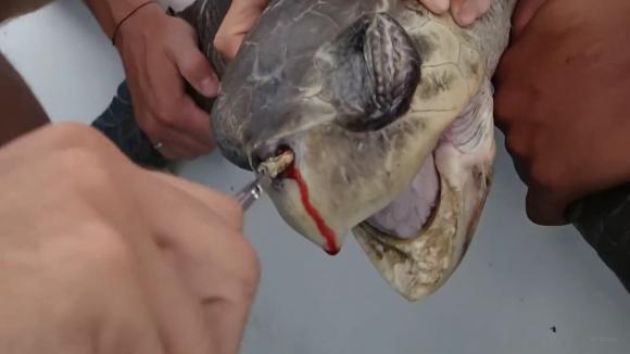 괴로운 바다거북 미국 텍사스 A&M 대학의 해양생물학자 크리스틴 피제너 탐사팀이 지난 2015년 8월 촬영한 바다거북. 중남미 코스타리카에 서식하는 수컷 올리브 리들리 바다거북은 왼쪽 콧구멍에 10~12cm 길이의 플라스틱 빨대가 끼인 채로 괴로워하다 탐사팀에 발견됐다. 거북은 빨대를 제거하는 내내 눈물과 피를 흘리며 괴로워했다. 이 영상은 일회용 빨대 사용에 대한 경각심을 불러일으키며 여러나라와 기업의 빨대 사용 금지 정책을 이끌어냈다. 2018.7.9  유튜브 캡처