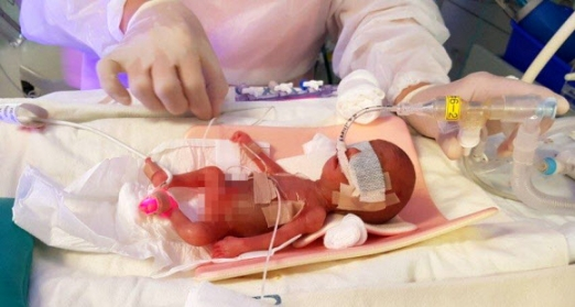 체중 302g, 키 21.5㎝로 태어난 이사랑 아기가 지난 1월 26일 서울아산병원 신생아중환자실 인큐베이터에서 기관지에 폐표면활성제를 투여하는 치료를 받고 있다.  서울아산병원 제공
