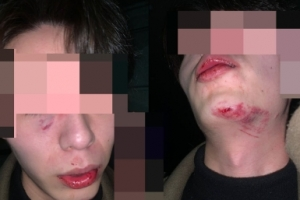 """""""마스크 안 쓴 괴한, 얼굴 짓밟고 때려"""" 묻지마폭행 당한 남성"""