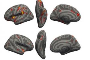 코로나19, 뇌 회색질 영역 줄여 치매 발생 가능성 높여