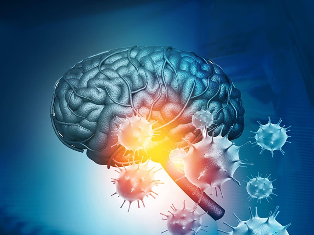 사이언스 브런치] 교활한 코로나19 바이러스, 뇌 우회 공격해 치명상 입힌다 | 서울신문