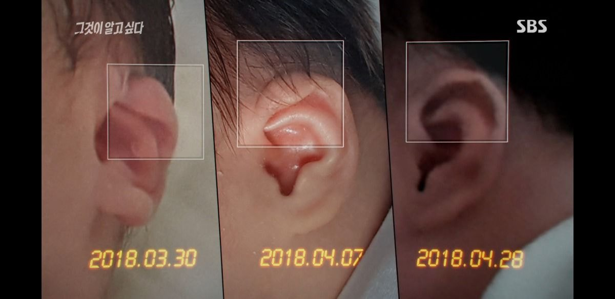 """[서울신문] 'Gorge'제작진""""구미 걸스의 경우 4 월 24 일경 왼쪽 귀 모양이 달랐다."""""""
